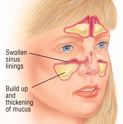 sinusite 1